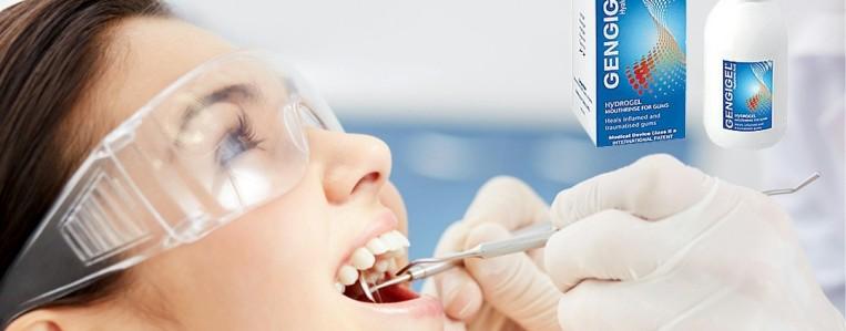 О профессиональной чистке зубов